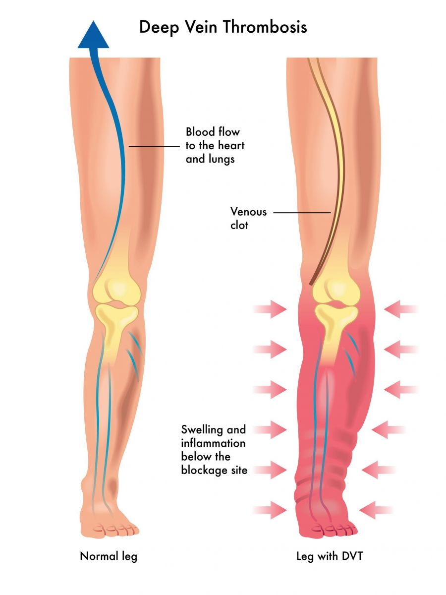 Know Your DVT (Deep Venous Thrombosis) Risks & What To Look Out For ...